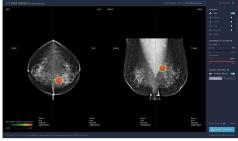 루닛, 유방암 진단 보조 AI '루닛 인사이트 MMG' 식약처 허가받아