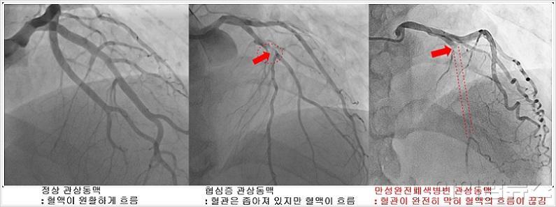 정상, 협심증, 만성완전폐색병변 관상동맥 영상 비교.jpg