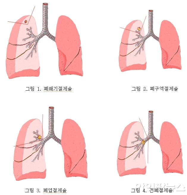 그림 1, 2, 3, 4.jpg